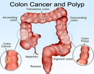 colon-cancer-gh0272