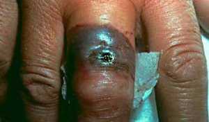 cutaneous_anthrax_infection