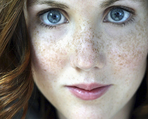 tips How To Get Rid Of Freckles
