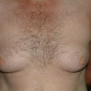 gynaecomastia-men