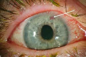 eye-disease-glaucoma