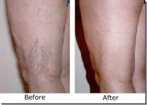 sclerotherapy-patient-3