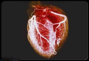 heart-disease-visual-guide-s1-arteriogram-of-healthy-heart