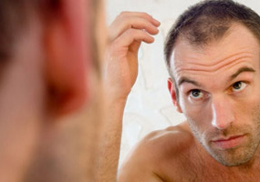 causes-of-hair-loss