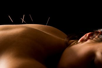 acupuncture-may-reduce-cancer-drug-side-effects